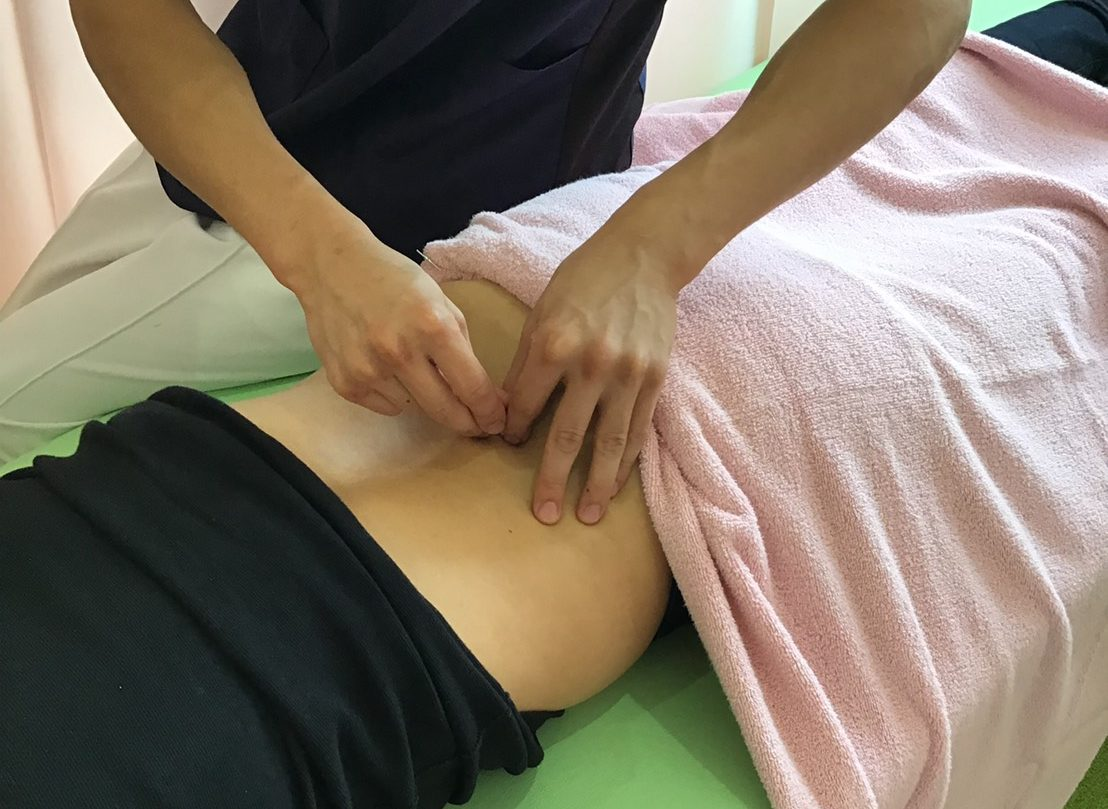 鍼灸|福島市のももの花整骨院